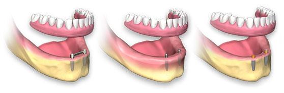 Οδοντοστοιχία στην κάτω γνάθο που συγκρατείται με εμφυτεύματα