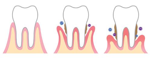 periodontologia6