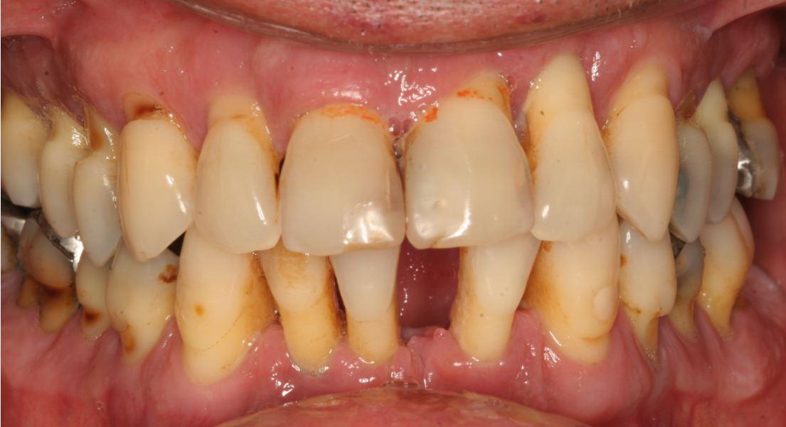 periodontologia8